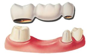 fiksna zobna protetika Keramični zobni mostiček na naravnie zobe laboratorijska zobna protetika