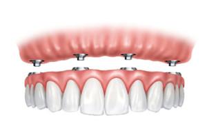 zobni-implantat-zobni-vsadek-implantacija-vsi-zobje