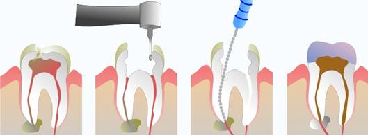 Endodontsko-zdravljenje-zdravljenje-zobnih-korenine-Endodontija