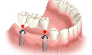 zobni-implantat-zobni-vsadek-implantacija-več-zob