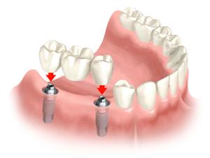 fiksna zobna protetika Keramični zobni mostiček na implantat
