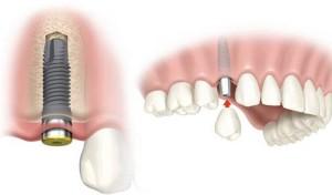 zobni-implantat-zobni-vsadek-implantacija-en-zob