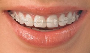 Ortodontia fiksni zobni aparat