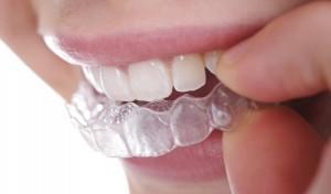 Ortodontija clear aligner