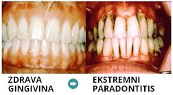 Kaj je parodontoza, parodontitis, parodontalna bolezen, parodontologija in kaj počne parodontolog.