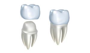 Fiksna zobna protetika, zobne krone, zobni mostički cirkonij, laboratorijska zobna protetika