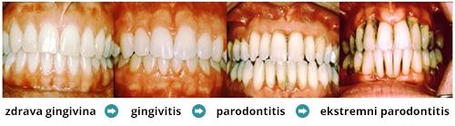 parodontologija-parodontoza-zdravljenje-parodontoze-parodontalna-blezen-paradontoza-parodontitis